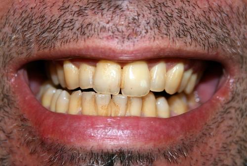 Eliminar El Sarro En Cinco Minutos Y Sin Ir Al Dentista No