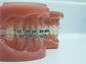 Los 10 mandamientos para que tu ortodoncia sea un éxito