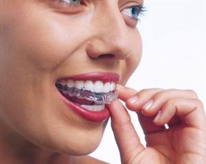 Ortodoncia invisalign: alinea tus dientes sin brackets