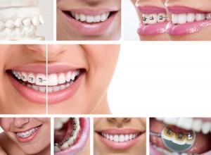 8 cuestiones fundamentales que te ayudarán a elegir tu ortodoncia