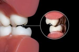¿Qué tienen que ver ortodoncia y bruxismo?