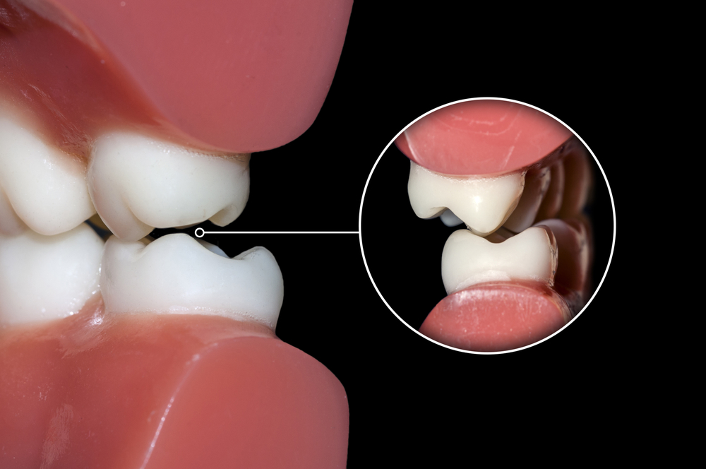 dental occlusion molars teeth close up