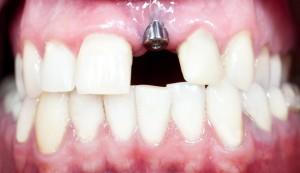 Implantología oral (V): ¿Cómo es el tratamiento con implantes dentales paso a paso?