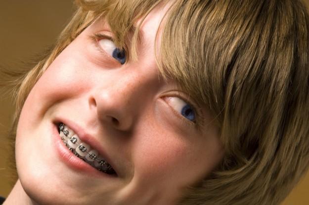 ortodoncia en menores
