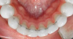 La función de los retenedores dentales para después de la ortodoncia