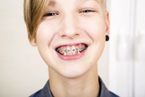 ¿Para qué sirve la cera en ortodoncia?