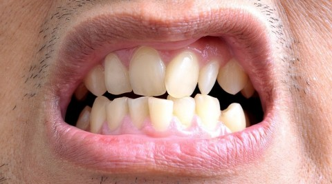 dientes apiñados