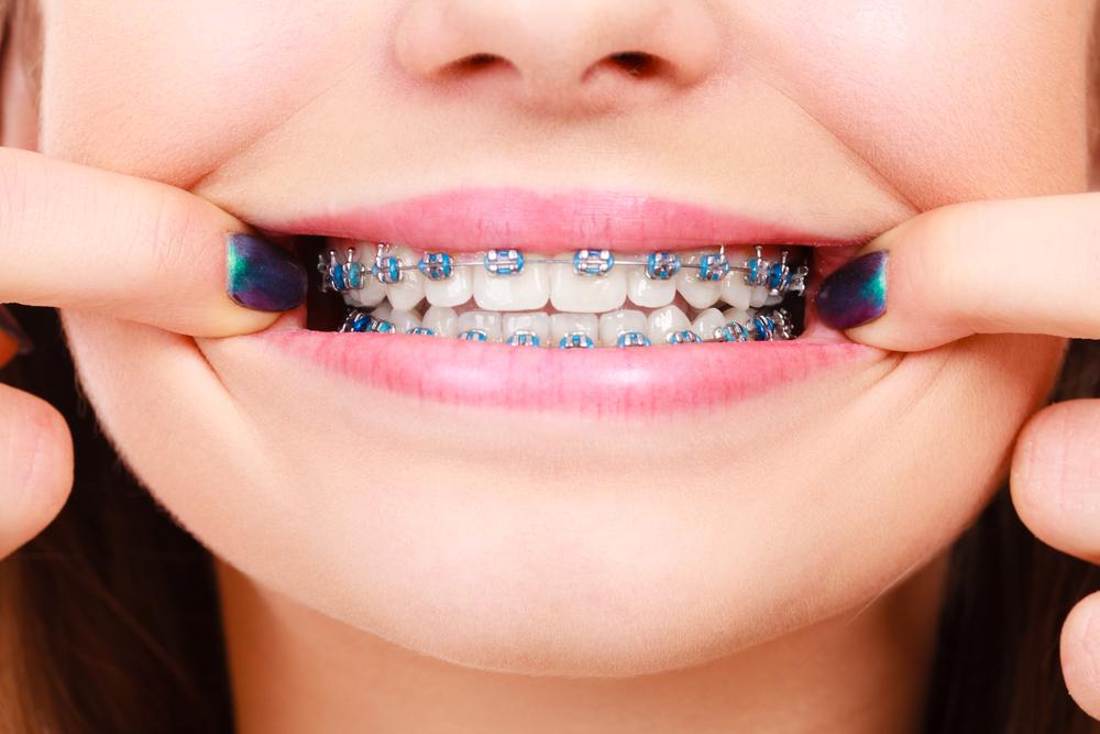 dudas sobre la ortodoncia
