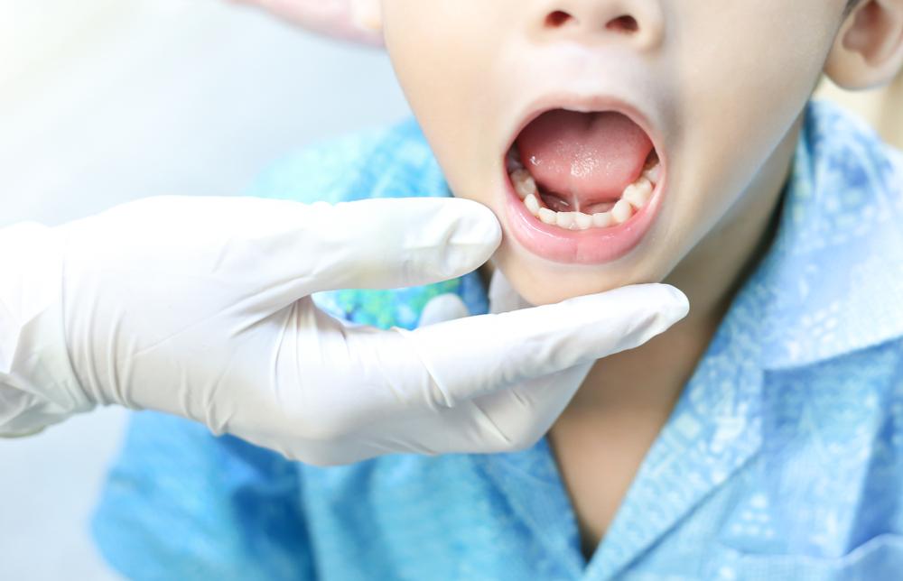 gingivitis en niños