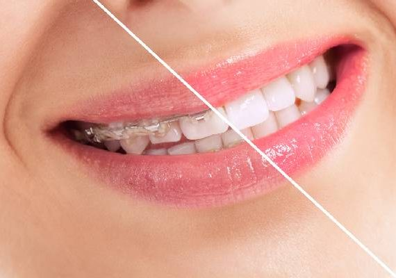 ortodoncia getxo