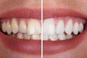 peligros del blanqueamiento dental no profesional