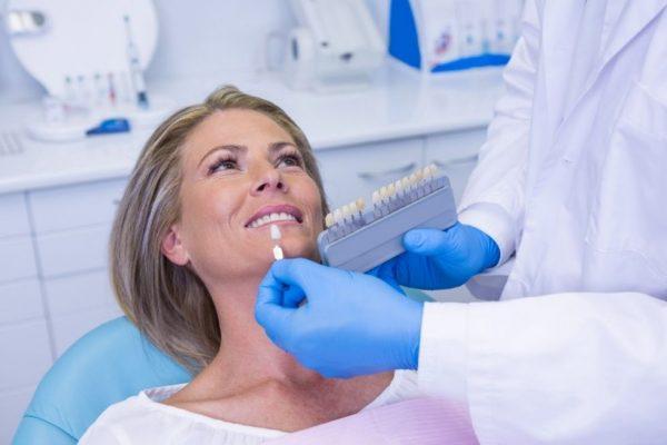 carillas dentales