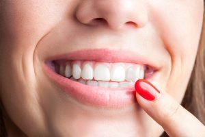 Tengo un diente oscurecido, ¿qué me pasa?