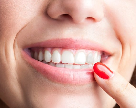 dientes oscurecidos