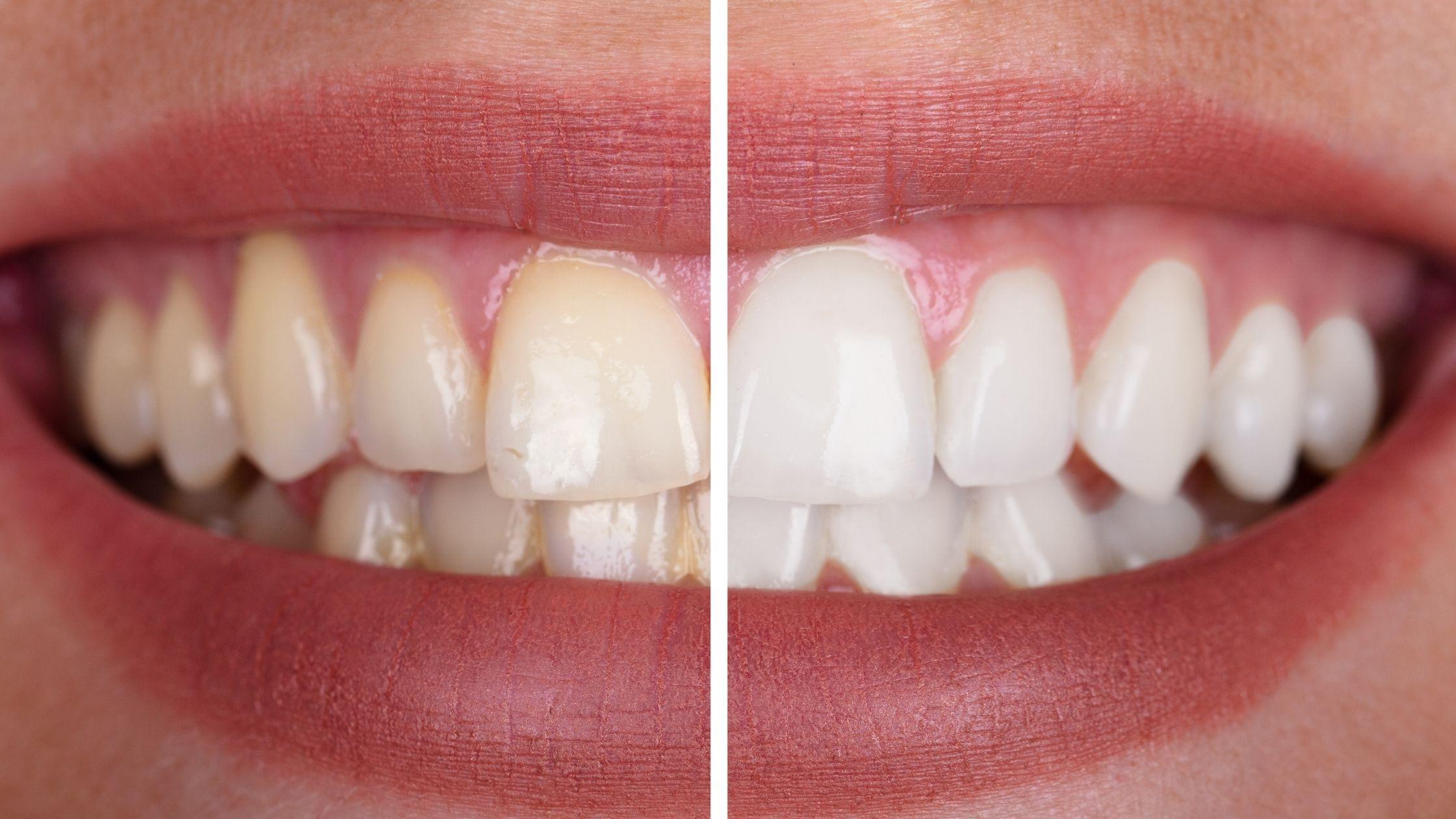 prolongar un blanqueamiento dental