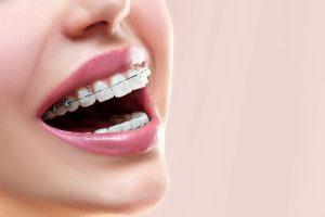 Fases de la Ortodoncia