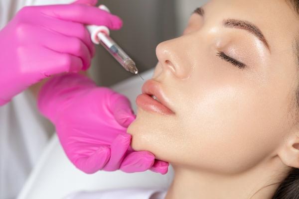Aplicación novedosa del ácido hialurónico en estética dental