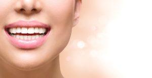 Acido hialuronico Estetica Dental