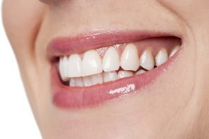 Qué causa la erosión dental y cómo tratarla