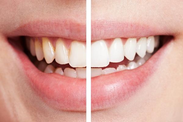 consejos para cuidar tu esmalte dental